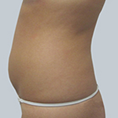 Liposuction In Carmel And Indianapolis Indiana